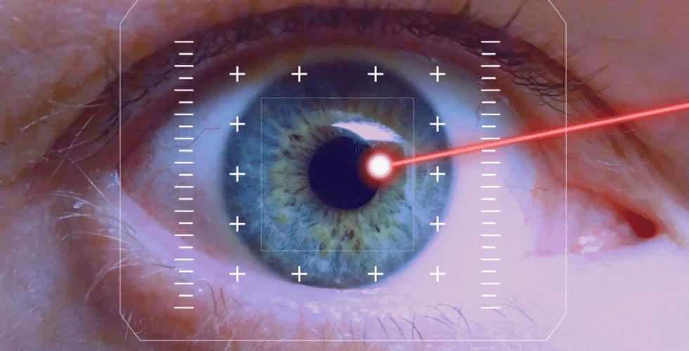 Auge in Großaufnahme beim Lasern