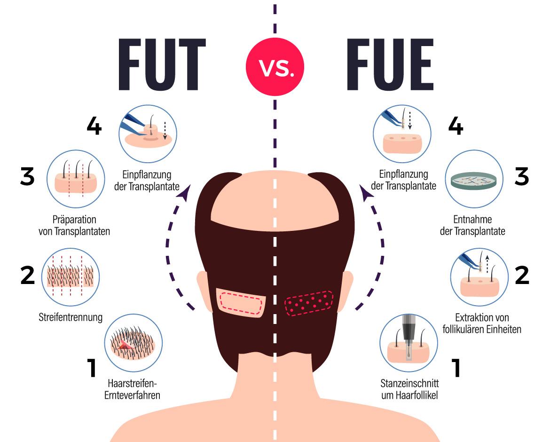FUE Haartransplantation – Haarverlust sicher bekämpfen
